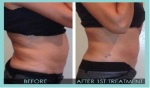 Premier Body Sculpt Before-After